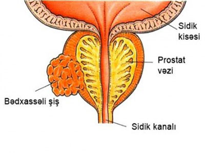 Prostat vəzi xərçəngi hər il 300 min can alır