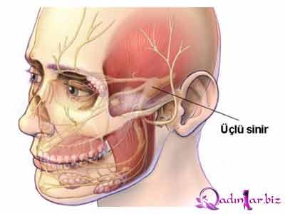 Üçlü sinirin iltihabı
