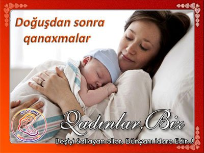 Doğuşdan sonra qanaxmalar