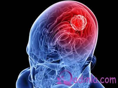 Beyin şişinin 6 ƏLAMƏTİ